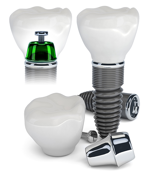 Dental Implants in Scarsdale