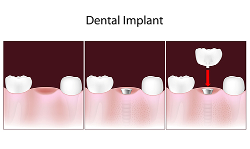Dental Implants in Mount Vernon