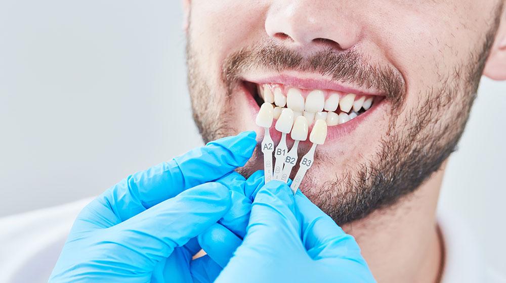 Porcelain Veneers | Dental Veneers | Cosmetic Dentistry | Guerrino